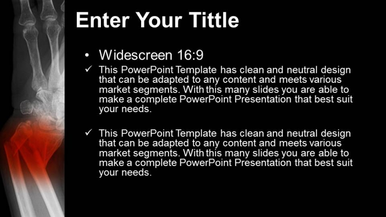 Powerpoint para presentacionesAntebrazo roto